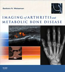 Imaging of Arthritis and Metabolic Bone Disease E-Book