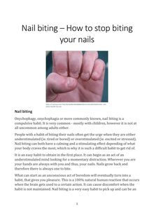 Nail Biting – How to Stop Biting Your Nails