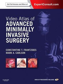 Video Atlas of Advanced Minimally Invasive Surgery E-Book