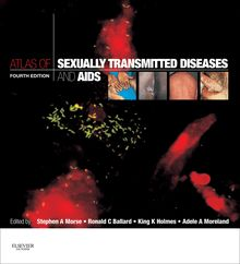 Atlas of Sexually Transmitted Diseases and AIDS E-Book