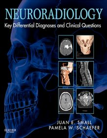 Neuroradiology: Key Differential Diagnoses and Clinical Questions E-Book